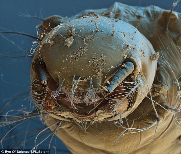 Что под ногтями под микроскопом